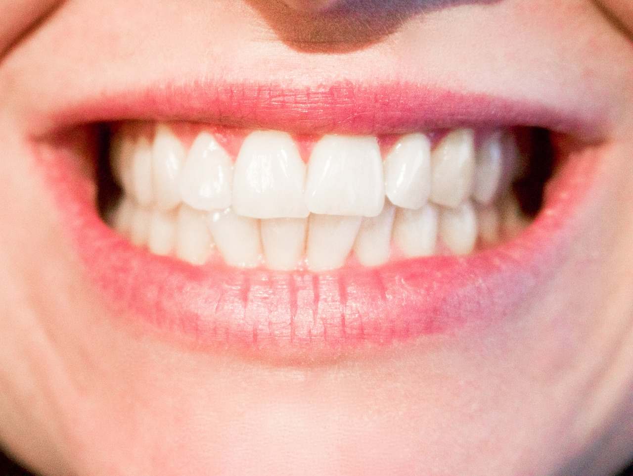 Dental Teeth whitening patient