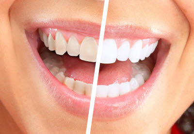 Photo comparing before and after teeth whitening services from Adler Dental in Flatiron District, Midtown Manhattan, NYC