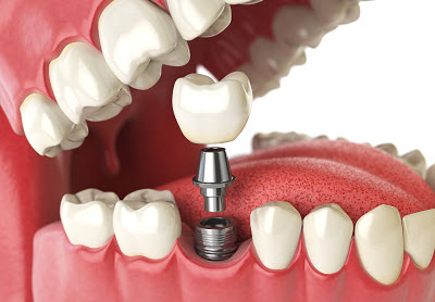 3d render of dental implant and crown restoration