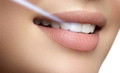 photo of laser dental treatment