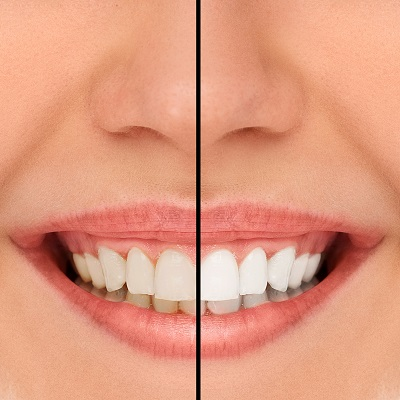 before and after image showing the results of teeth whitening