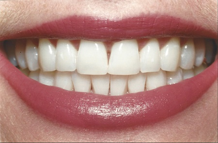 after teeth whitening in honolulu