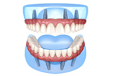 3d illustration of full mouth restoration using 8 implants
