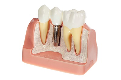 Dental Implants in Honolulu, HI