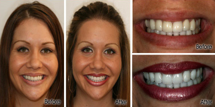 Honolulu, HI Porcelain Veneers Before and After - Stephen R Ho DDS Inc