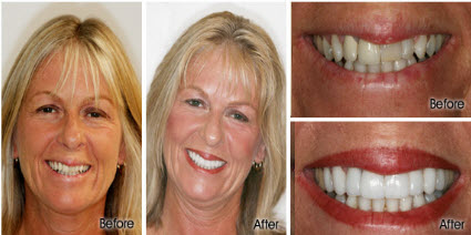 Before and After Porcelain Veneers and Crowns Honolulu, Waikiki  - Stephen R Ho DDS Inc