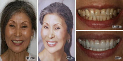 Honolulu, Waikiki Porcelain Veneers and Crowns Before and After - Stephen R Ho DDS Inc