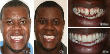 Honolulu, Waikiki Porcelain Veneers Before and After - Stephen R Ho DDS Inc
