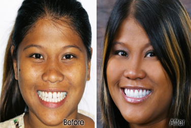 Waikiki Porcelain Veneers Before and After - Stephen R Ho DDS Inc