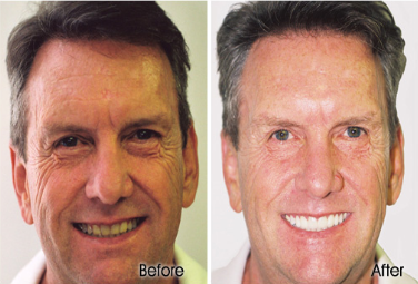 Porcelain Crowns in Honolulu, Waikiki - Stephen R Ho DDS Inc