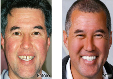 Before and After Porcelain Crowns in Honolulu, Waikiki - Stephen R Ho DDS Inc
