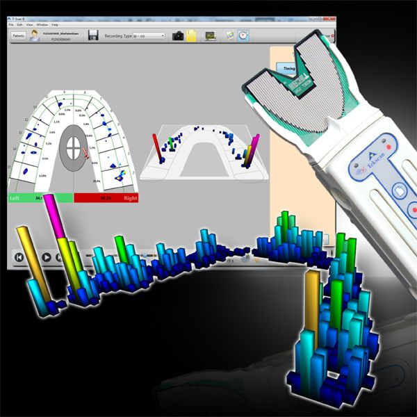 tscan digital bite analysis system edmonton and allard alberta dentist