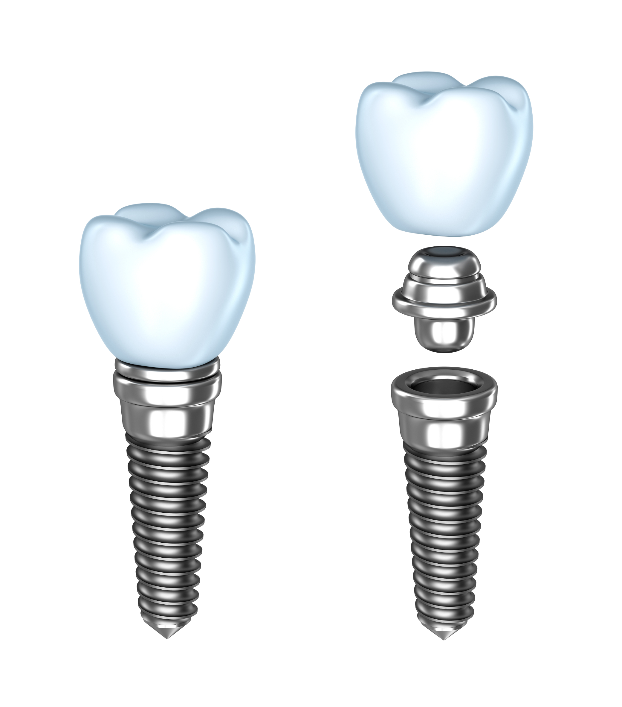 San Antonio Dental Implants and All-on-4 at Voigt Family Dentistry