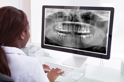 Dentist looking at xray on computer screen