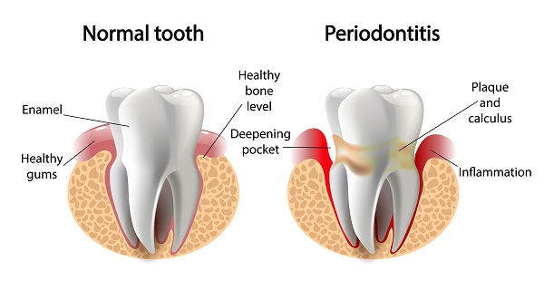 Graphic of periodontal disease