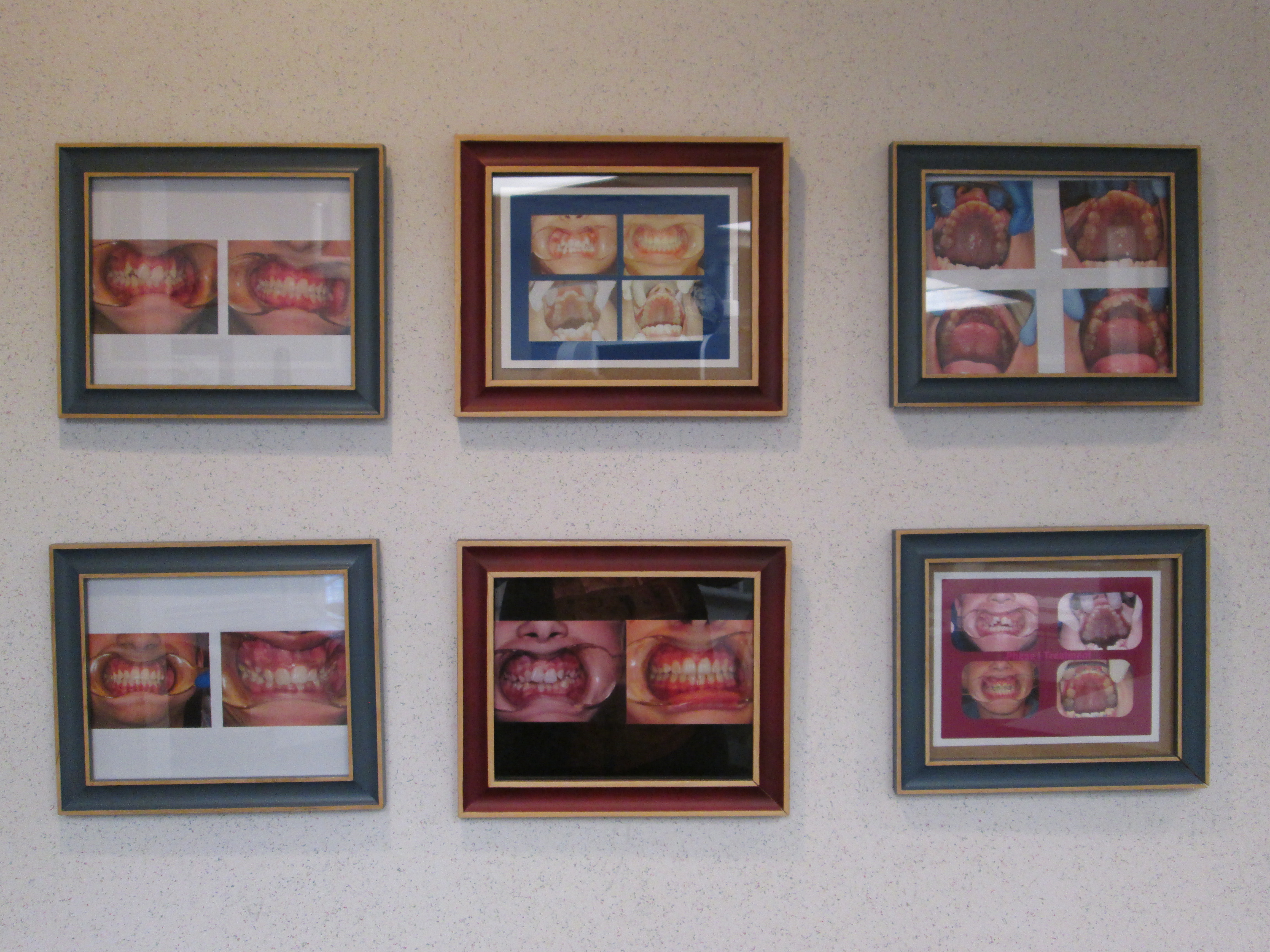 Before & After Images at Meslin Pediatric & Family Dentistry