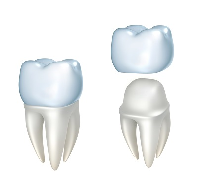 CEREC same day crowns in Beaverton, OR | Good Life Dentistry