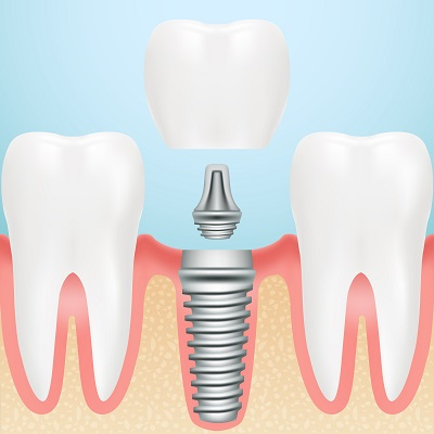 dental implant restorations in tucker georgia