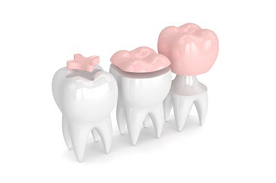 3d render of teeth with inlay, onlay and crown over white background