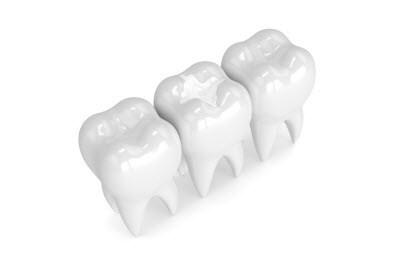 3d render of teeth with composite filling over white background