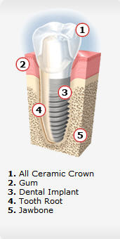 Canton MI Dental Implants - Restorations