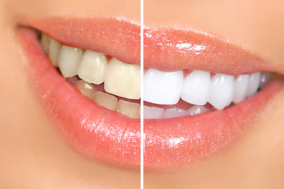 Before and after shot of teeth whitening