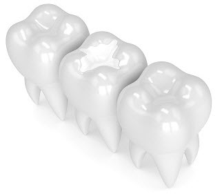 3D rendering of tooth with white composite filling