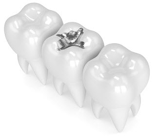 3D rendering of tooth with amalgam filling