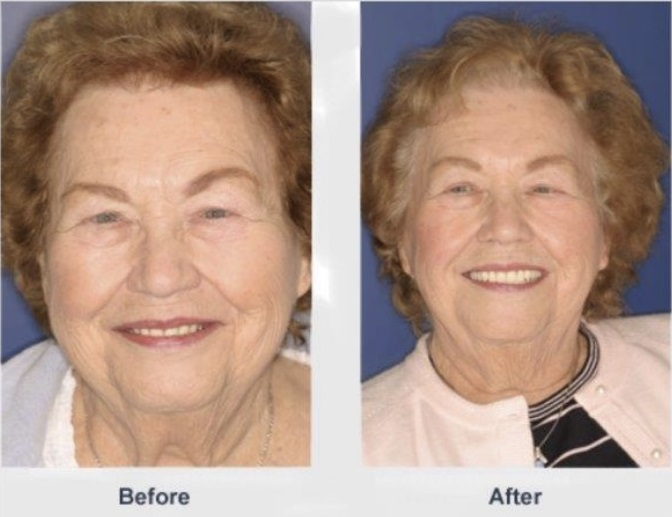 Before & After Dentures at Muntean Dentistry