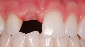 Before a Single Tooth Extraction and Dental Implant by Dr. Cecala at PerioCare