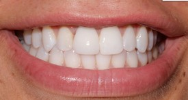 After a Single Tooth Implant by Dr. Cecala at PerioCare