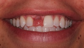 Before a Single Tooth Implant by Dr. Cecala at PerioCare