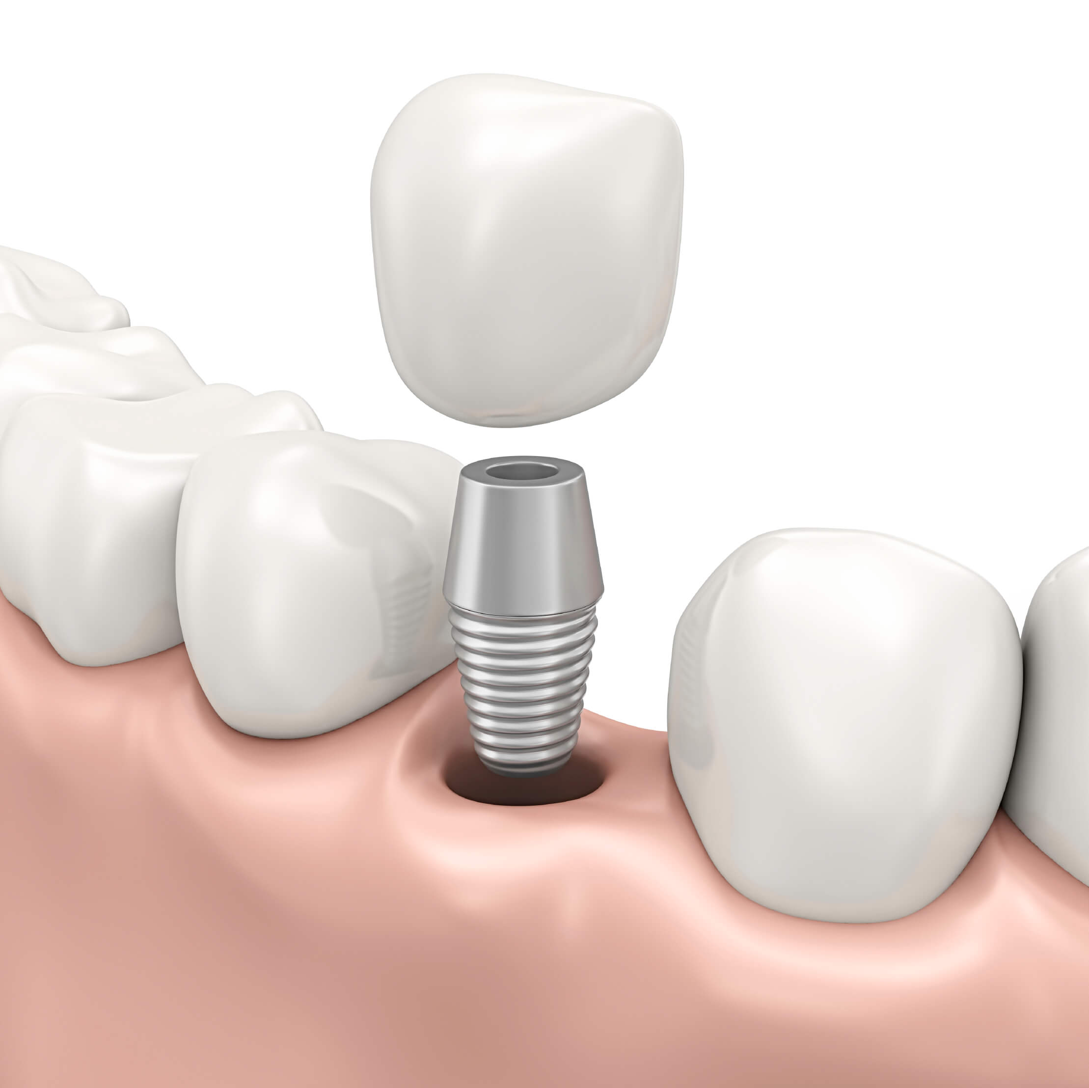 Dental implant restorations in Chicago