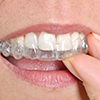 Close up of Invisalign braces