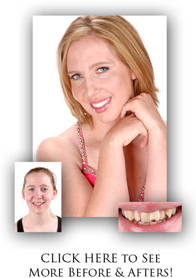 Before & After Dental Makeovers in Spokane