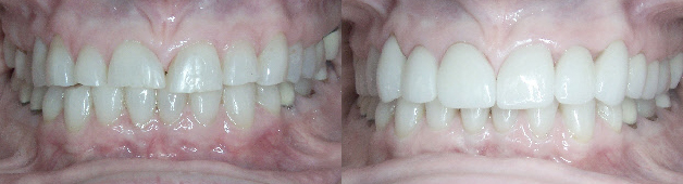 Smile Makeover in Spokane at Bryan Hill DDS