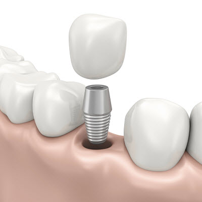 Dental Implant Special in Acton