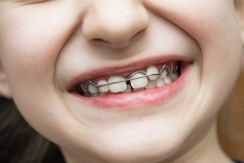close up of a child's smile with braces