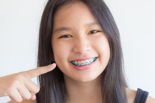 asian girl smile and point at her teeth , she has braces