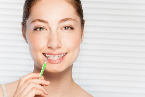 Happy woman cleaning brace with interdental brush
