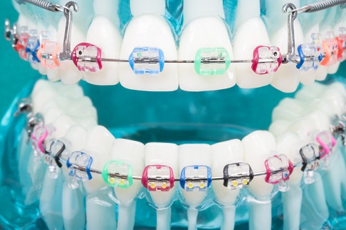 orthodontic model with braces