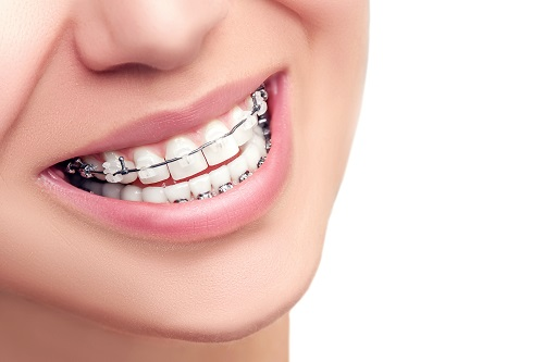 close up of smile with braces