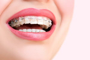 Traditional braces in Okotoks, AB