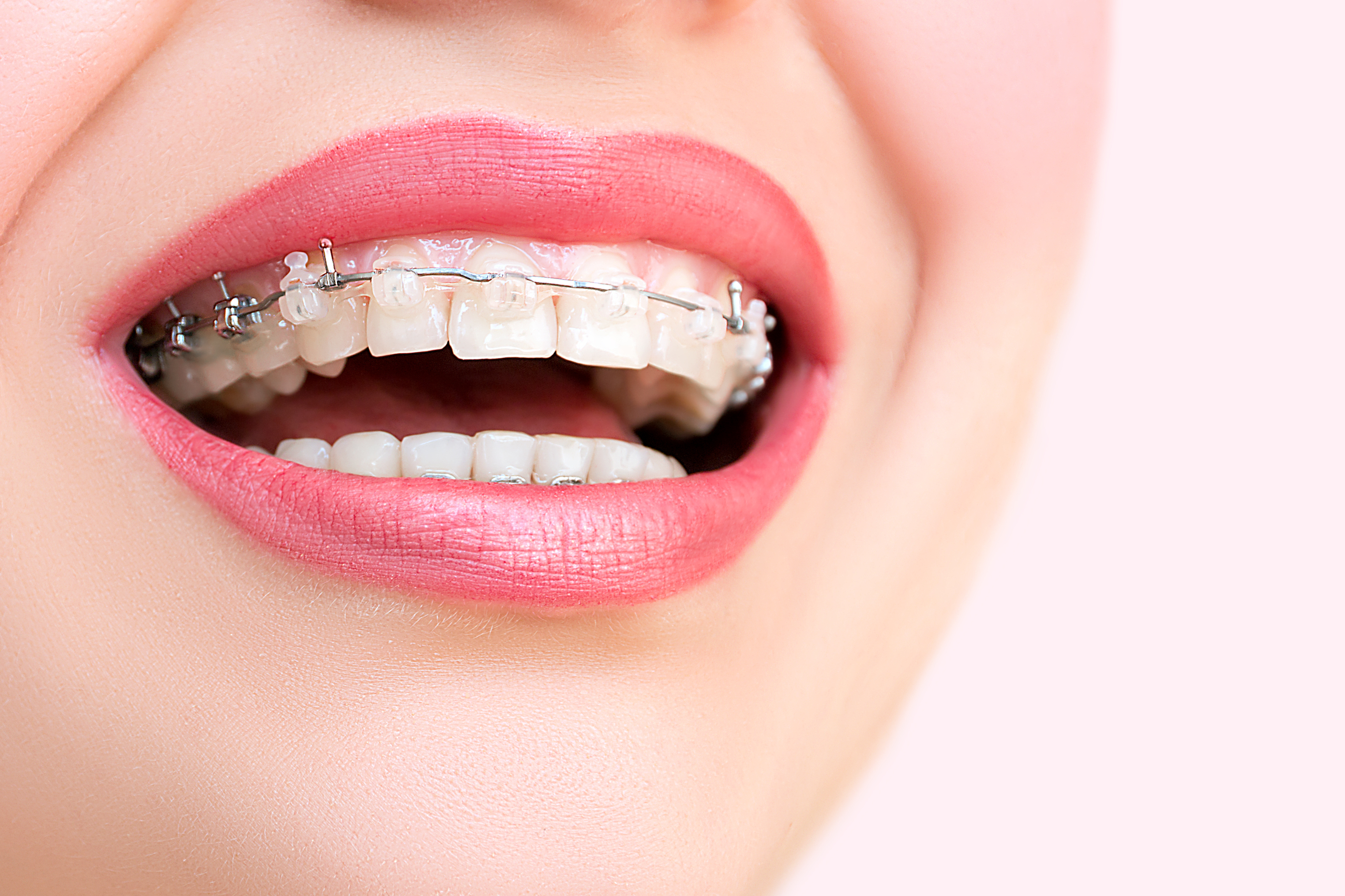 Orthodontic treatment in cambridge