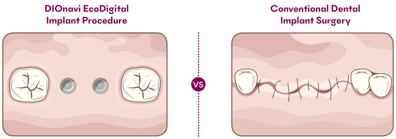difference between DIOnavi implants and conventional dental implant surgery