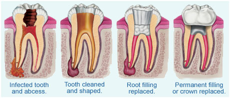 Root Canal Therapy in Rancho Cucamonga