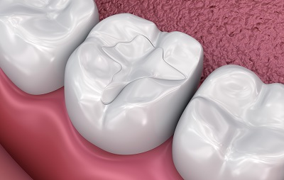Composite Fillings Image