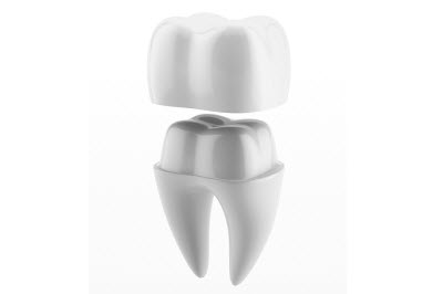 3d render of Dental crown and tooth