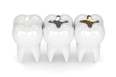 3d render of teeth with white composite, gold, and silver fillings