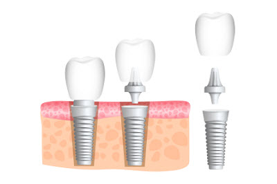 Realistic dental implant structure with all parts: crown, abutment, screw